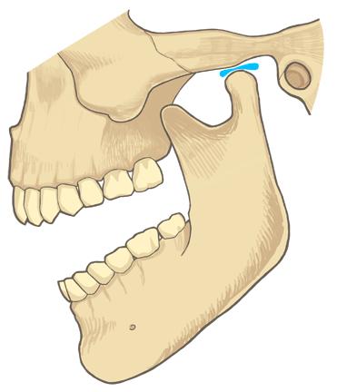 顎関節症(がくかんせつしょう)