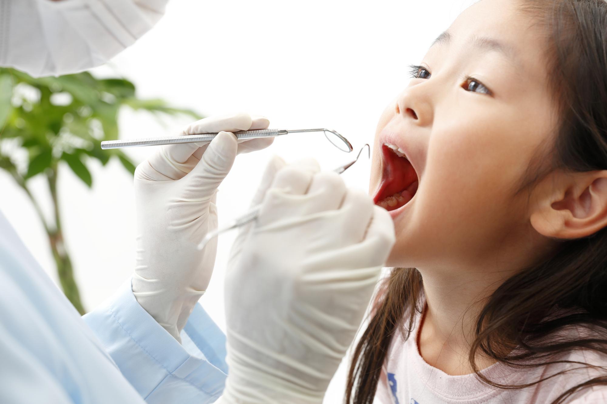 Ⅰ期治療(子供の矯正)