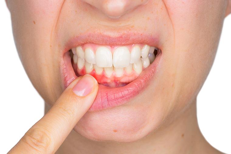 口内炎・粘膜のトラブル