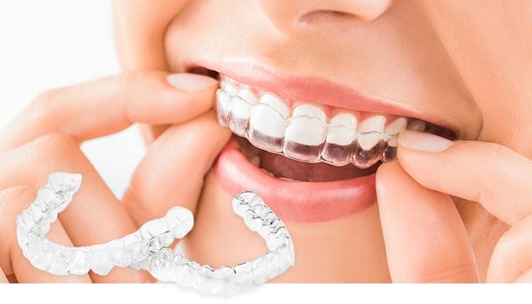 歯並びをきれいにする矯正歯科